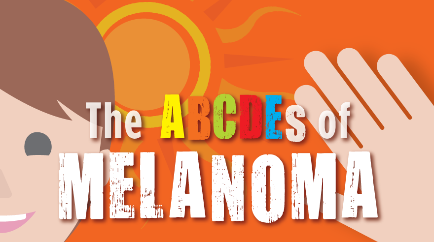 Learn the ABCDEs of melanoma (infographic)
