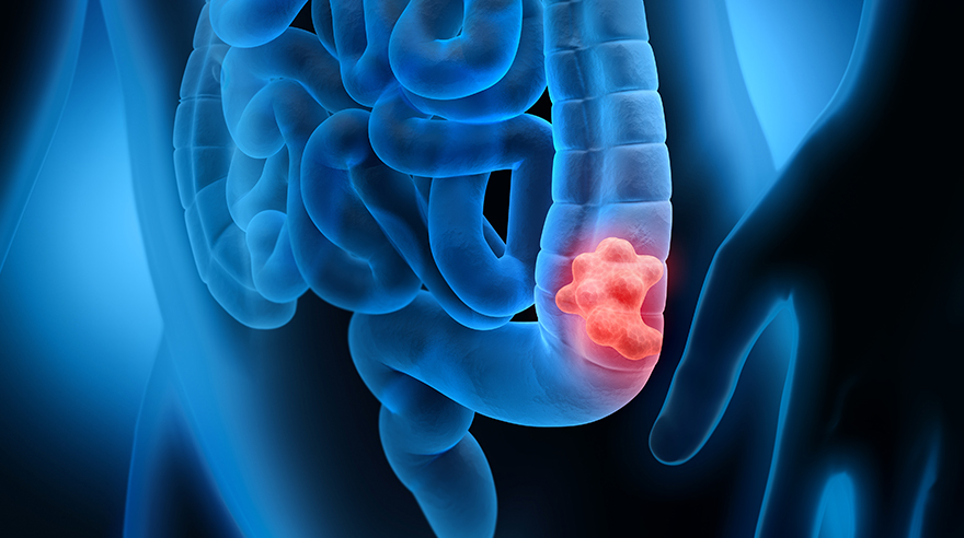 Which Colon Cancer Screening Is Right For You San Diego Sharp Health News
