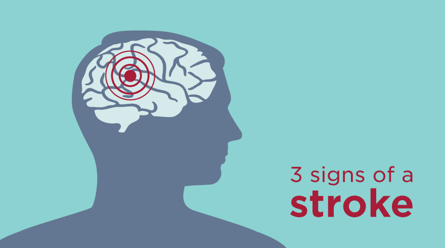 3 signs of a stroke (infographic)