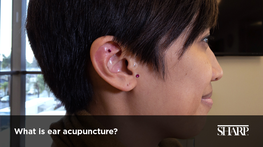 What is ear acupuncture? (video)