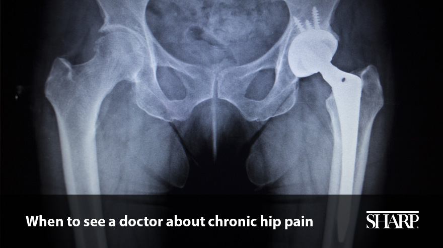 When to see a doctor about chronic hip pain (video)