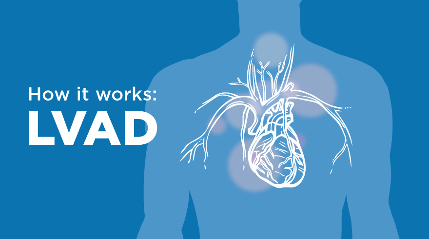 How it works: LVAD (infographic)