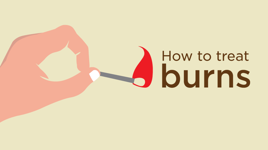 How to treat burns (infographic)