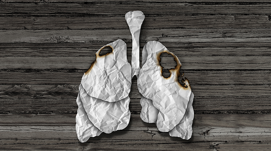 This test can reduce lung cancer deaths