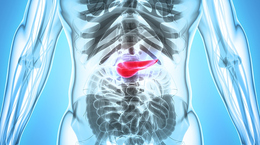 Why pancreatic cancer is so deadly