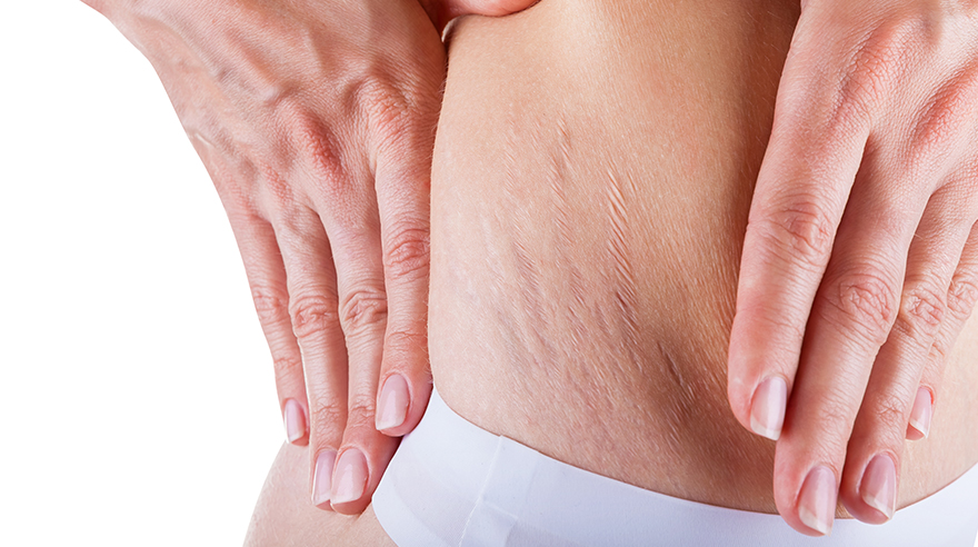 What can you do about stretch marks?