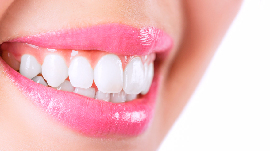 How to whiten your teeth safely