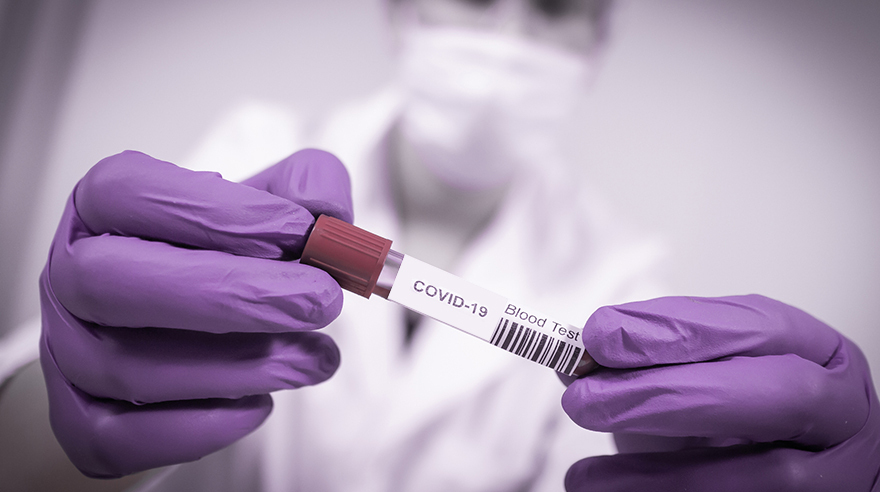 Should I be tested for COVID-19?