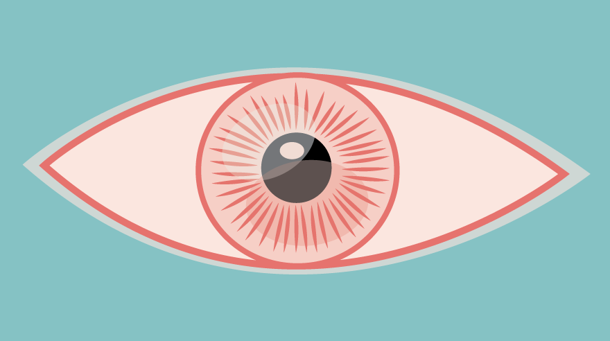 Do you need antibiotics for pink eye?