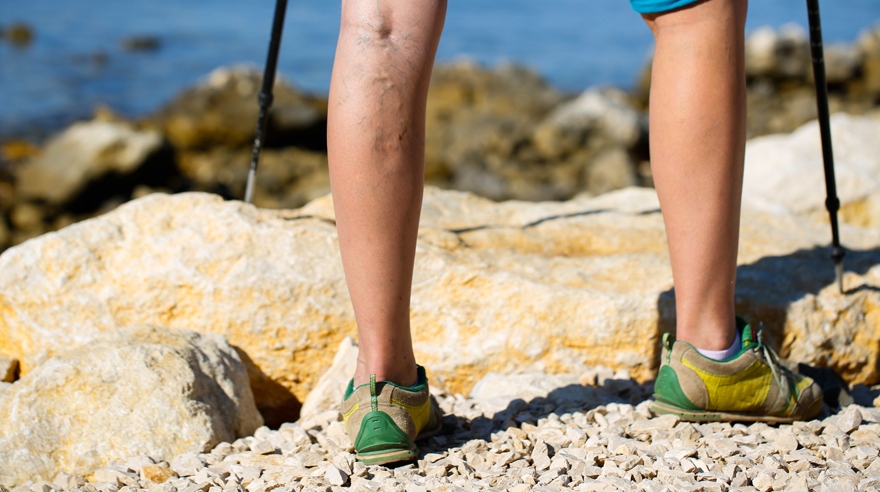Help for varicose veins